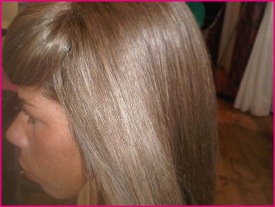 Non Surgical Hair Replacement 4