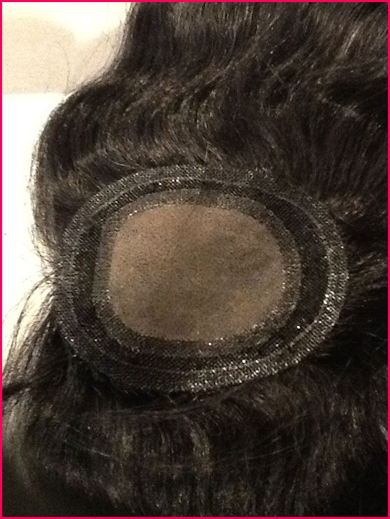 Non Surgical Hair Replacement 7